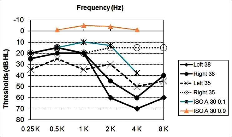Figure 3: Audiometric thresholds of two participants (35 and 38 year olds) with history of occupational noise exposure and the 10th and 90th percentile data for 30-year-old unscreened population from ISO 1999 database B
