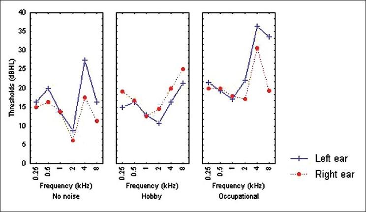 Figure 5: Auditory thresholds across various groups in each ear. The noise exposure group, ear, and frequency interaction was statistically significant (P = 0.041)