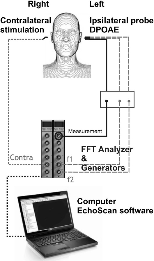 Figure 1: Details of the EchoScan. f1 and f2: primary frequencies. f2/f1 = 1.2. FFT: Fast Fourier Transform