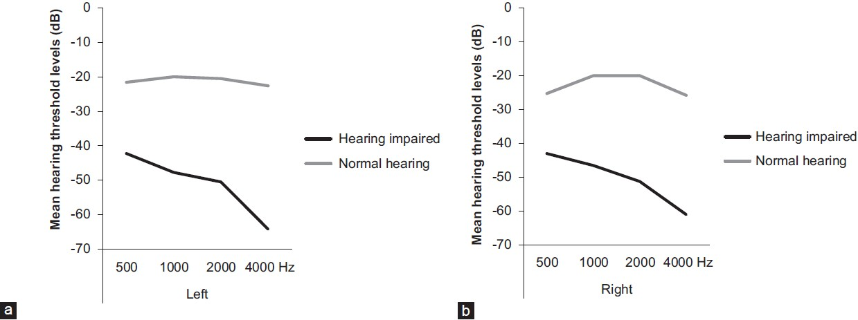 Figure 1: (a) Mean hearing threshold levels for the left ear of the hearing impaired and normal hearing group (b) Mean hearing threshold levels for the right ear of the hearing impaired and normal hearing group