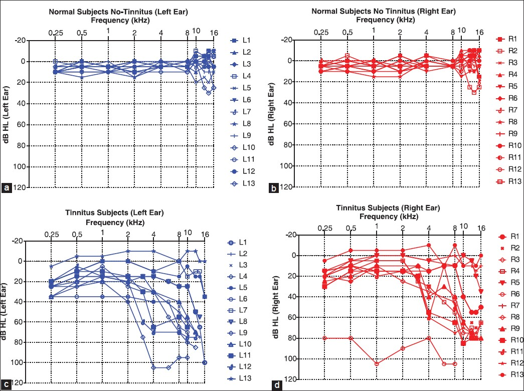 the relationship between tinnitus pitch and audiogram
