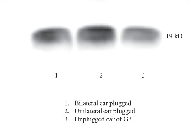 Figure 6: Western blotting of α-synuclein in total homogenates of cochleae in the ear plug groups shows similar expression level of α-synuclein in bilateral ear plugged group (G2) and plugged ears of unilateral ear plug group (G3). Unplugged ear of G3 showed much weaker expression α-synuclein compared to plugged ears