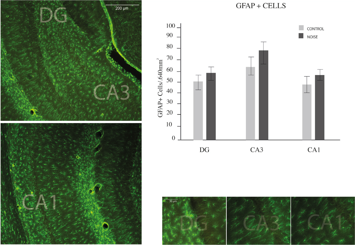 Figure 3: Hippocampal astrocyte numbers. Counting of GFAP (green star-like cells showed in micrographs) performed in the hippocampus of young rats. Regions of interest are displayed on a series of slices depicted in the left part of the figure. Examples of every counted region are showed on right-bottom figures. A trend to greater but non-significant population of GFAP-positive astrocytes was distinguished in CA3, followed by DG and the CA1 areas